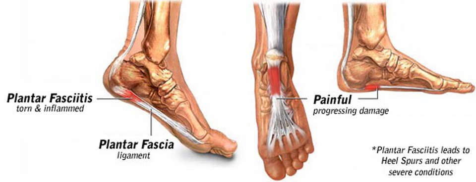 Plantar Fasciitis I Beat It So Can You Community